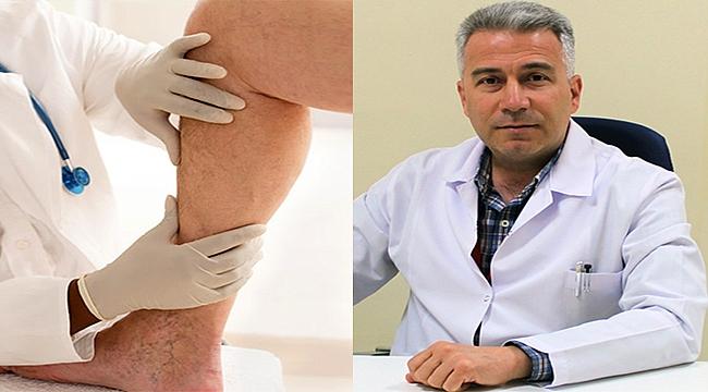 Çanakkale'de varis tedavisinde ameliyatsız yöntem