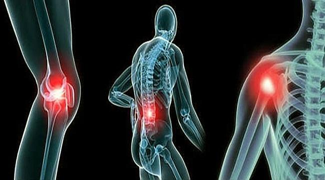 Çanakkale Sağlık Müdürlüğünden 'Artrit' Uyarısı!